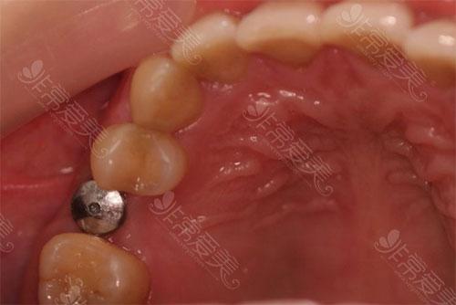 一颗种植牙种植效果