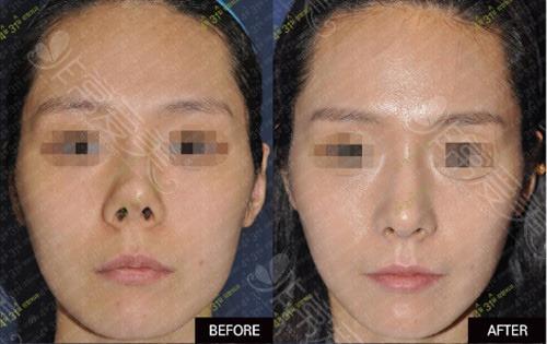 韓國4月31日整形外科8次攣縮鼻修復對比圖