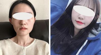 韩国美迪莹整形外科下颌角手术效果怎么样