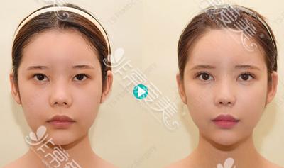 韩国TS整形外科轮廓手术前后对比图