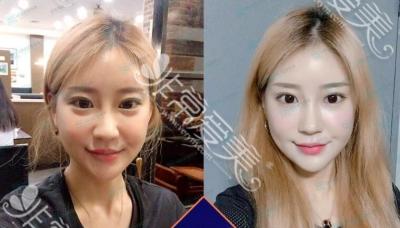 韩国NANA整形外科轮廓手术对比