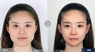 韩国菲斯莱茵整形外科轮廓对比图
