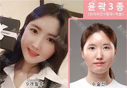 韩国齐娥整形轮廓三件套案例