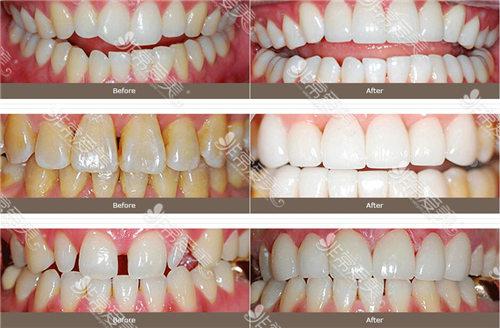 韓國齊娥牙科醫院瓷貼面效果圖