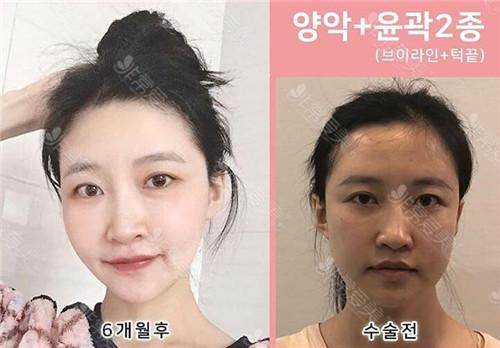 齊娥整形外科雙鄂+輪廓兩件套案例