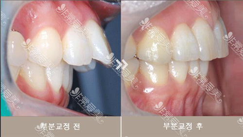 齐娥牙科牙齿矫正案例对比