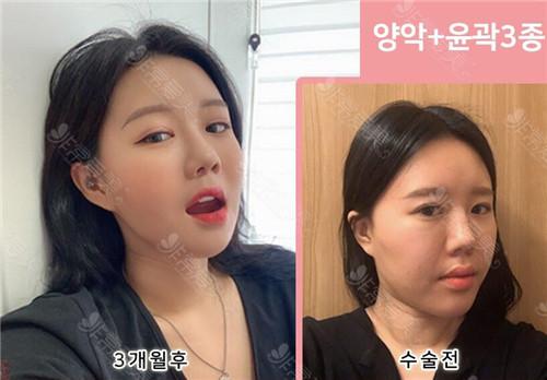 韓國齊娥女士雙鄂輪廓三件套整形效果對比