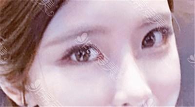 双眼皮6 7 8毫米效果图