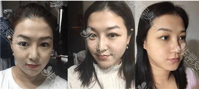 韩国玛博尔双眼皮案例效果