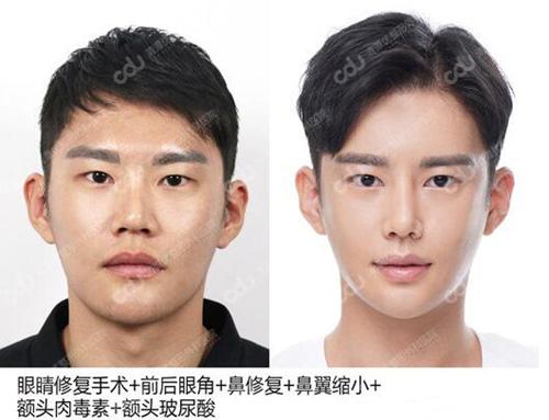 韓國CDU清潭優整形外科男士眼鼻修復案例