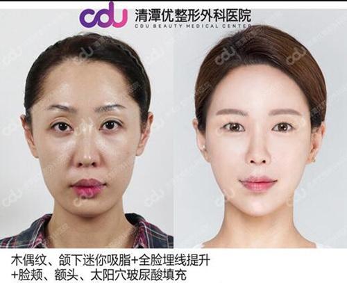 韓國清潭優整形外科面部提升微整形案例
