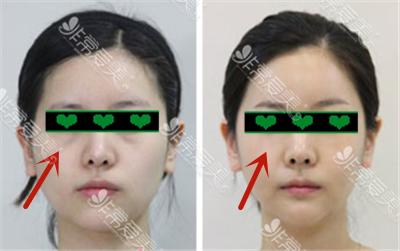 眼底脂肪排列术对比