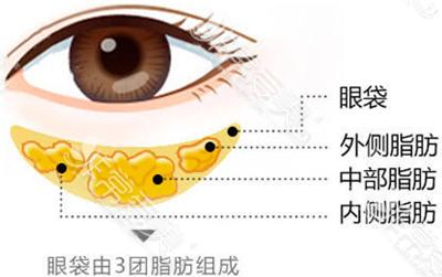 眼底脂肪分布图