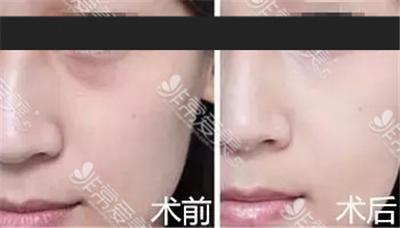 江南k-beauty整形医院面中提升三件套效果