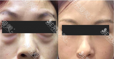 江南k-beauty整形医院面中提升三件套对比