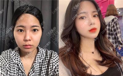 韩国DA整形外科轮廓案例