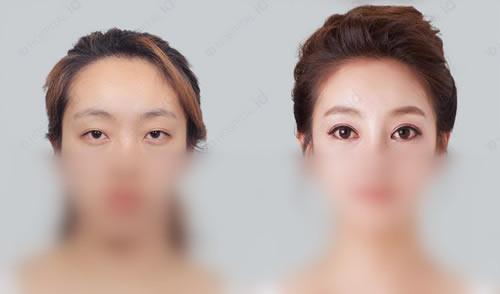 韩国ID整形医院双眼皮案例