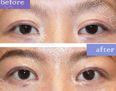 韩国BIO整形医院双眼皮修复案例