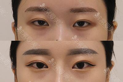 眼睑下垂矫正案例
