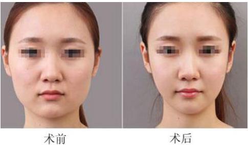 面部吸脂效果对比