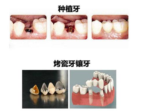 种植牙和镶牙对比