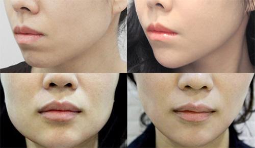 韩国WIZ&美整形模特瘦脸案例