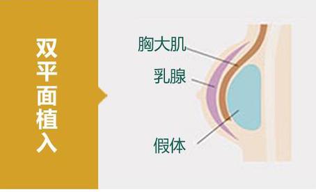 假体隆胸,双平面植入法