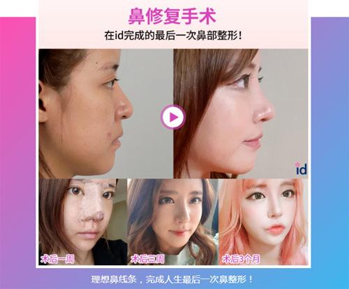 韩国ID医院鼻修复手术案例