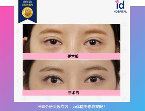 韩国ID医院眼修复案例