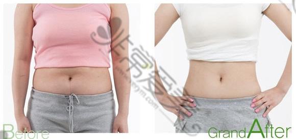 韩国高兰得医院腰腹吸脂整形前后对比