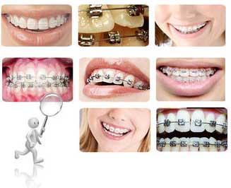 牙齿矫正方法