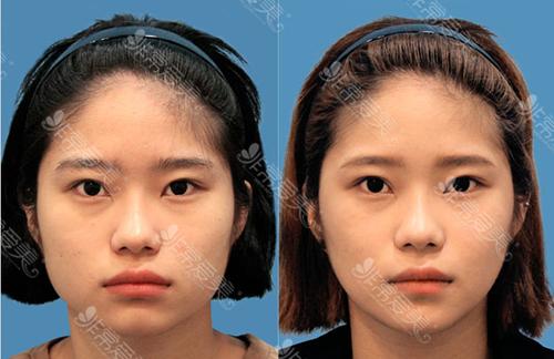 韩国江南三星整形外科咬肌缩小术案例