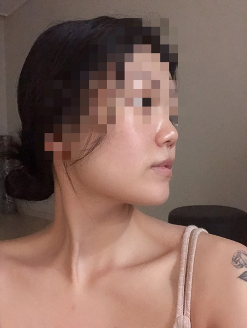 韩国VG百利酷医院隆鼻修复案例