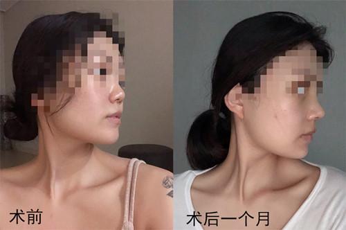 隆鼻修复手术后一个月