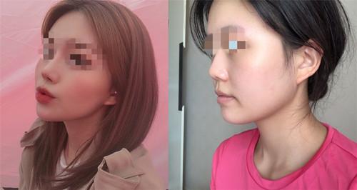 隆鼻整形修复前后对比照