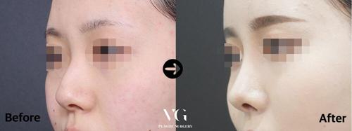 韩国VG百利酷官网隆鼻案例