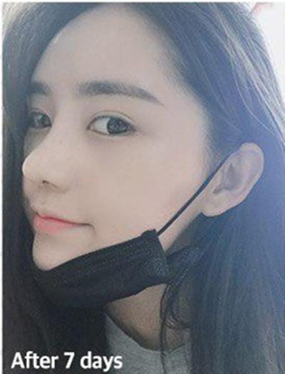 韩国VG百利酷隆鼻多久能消肿