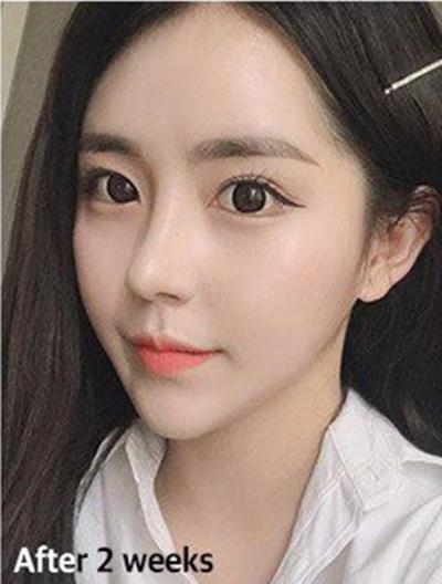韩国VG百利酷隆鼻恢复全过程