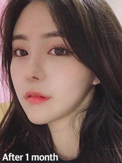 韩国VG百利酷隆鼻案例