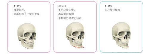 韩国迪美下巴前移整形手术流程