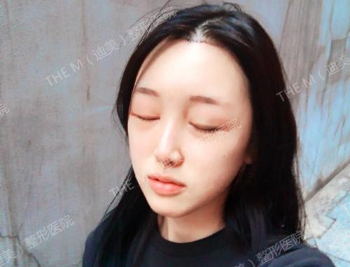 韩国迪美整形额头缩小术后三天照