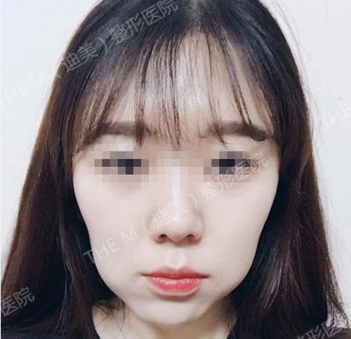 韩国迪美THE-M面部轮廓术前
