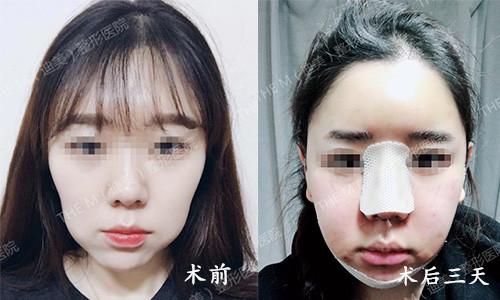 韩国迪美THE-M面部轮廓术后三天