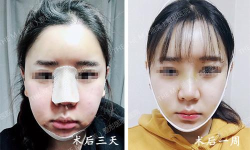 韩国迪美THE-M面部轮廓术后一周