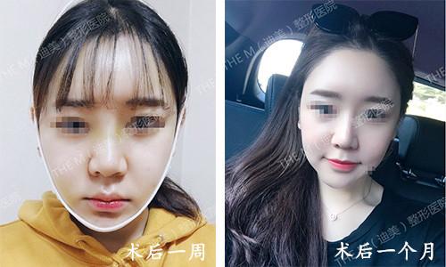 韩国迪美THE-M面部轮廓术后一个月