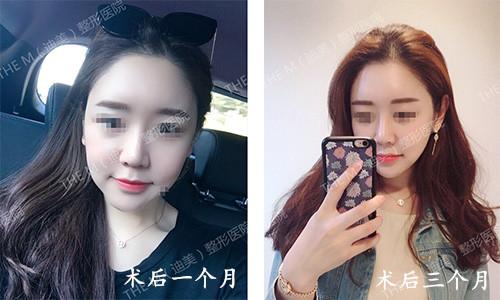 韩国迪美THE-M面部轮廓术后三个月