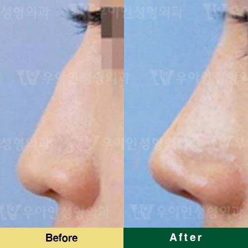 韩国优雅人整形外科驼峰鼻改善案例