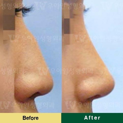 优雅人整形外科自体软骨隆鼻优势
