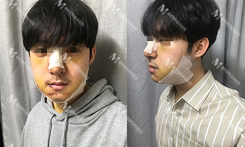 韩国迪美THE-M鼻综合+轮廓三件套手术术后一周