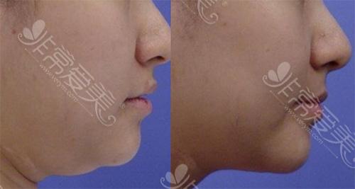 双下巴吸脂前后对比